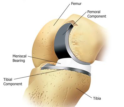 knee-part